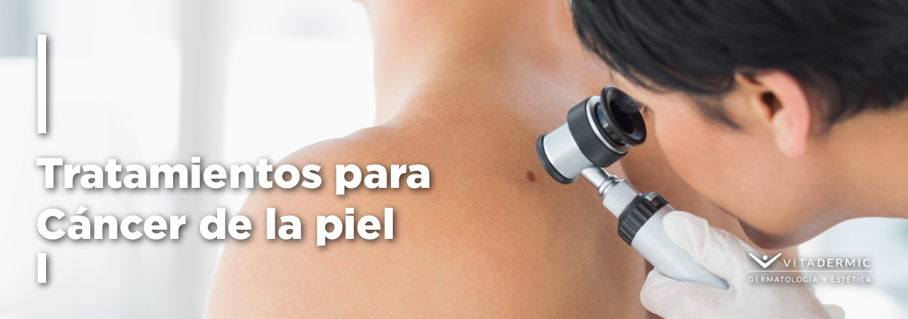 tratamientocáncer_WP_Slider